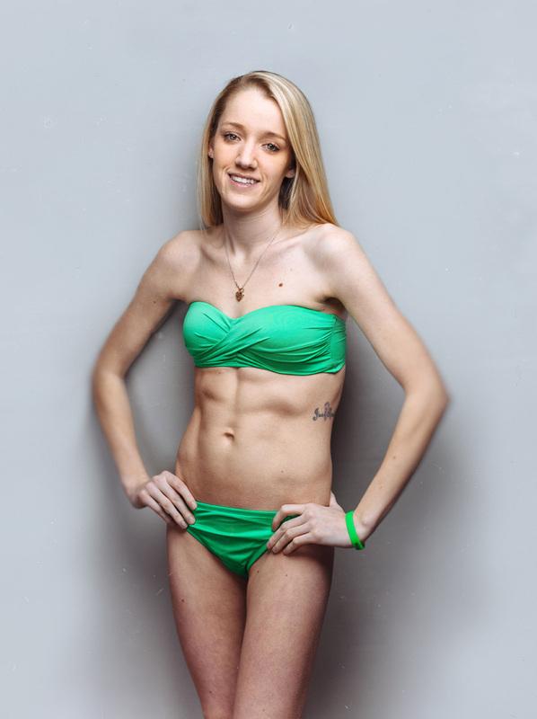 Bikini babe appendicitis pictures